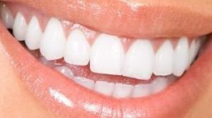 http://dentalplus.ro/wp-content/uploads/2015/11/ceramica1.jpg