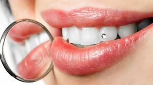http://dentalplus.ro/wp-content/uploads/2015/11/esteticadentara.jpg