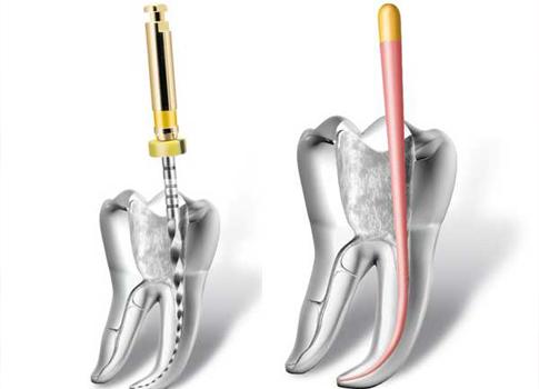 http://dentalplus.ro/wp-content/uploads/2016/04/Endodontie1.jpg