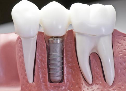 http://dentalplus.ro/wp-content/uploads/2016/04/augumentare.jpg