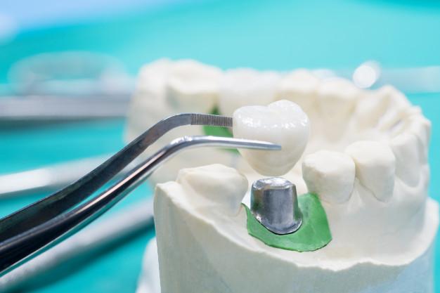 http://dentalplus.ro/wp-content/uploads/2016/04/implant.jpg
