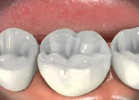 http://dentalplus.ro/wp-content/uploads/2016/04/incrustatia.jpg