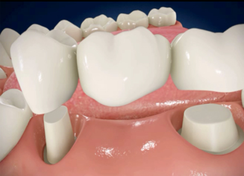 http://dentalplus.ro/wp-content/uploads/2016/04/protetica.jpg
