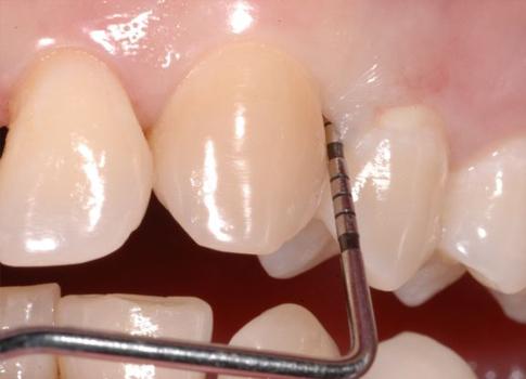 http://dentalplus.ro/wp-content/uploads/2016/04/t-parodontala.jpg